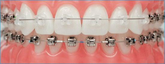 Brackets-tratamientos-de-ortodoncia