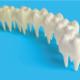 Descubre lo que es la hipoplasia dental